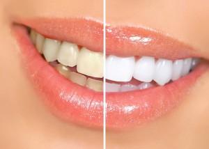Новейшие способы отбеливания зубов в домашних условиях